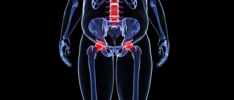 Come obesità e sovrappeso favoriscono l'osteoporosi